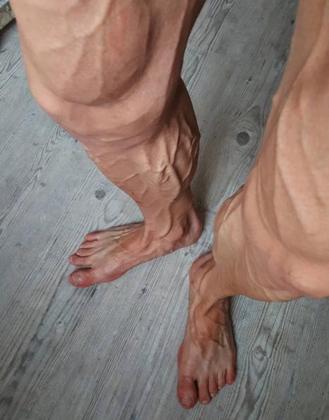 nogi.jpg